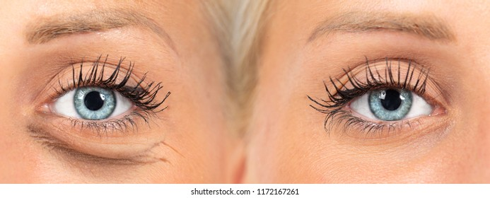 Saggy skin under eye before and after removal