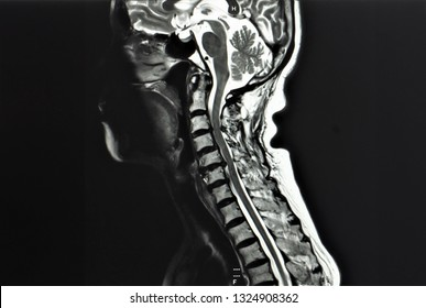 a sagittal view of T2 magnetic resonance image or MRI showing cervical myelopathy and radiculopathy or spinal cord compression in a patient with spastic gait