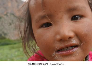 Samar, Upper Mutang / Nepal - August 22, 2014: Smiling face of an unidentified little sick Tibetan girl with nasal discharge.