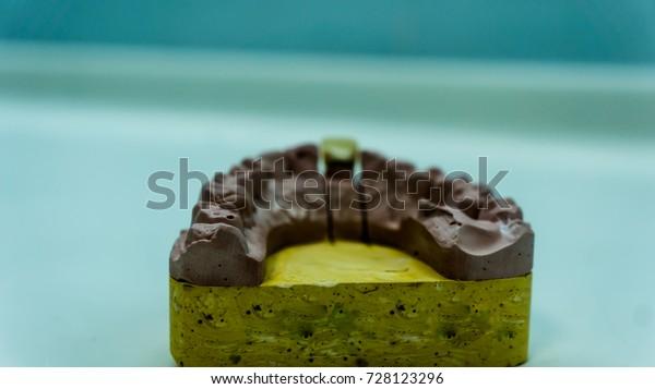 Sample Prosthodontic Dental Mold Stock Photo (Edit Now) 728123296