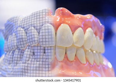 Samples of removable total prostheses of the upper and lower jaws