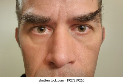 San Francisco, CA, USA  March 1, 2021 Unkempt eyebrows with a gray background. Eyebrows that need to be trimmed.