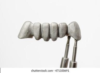 sandblasted bridge, dental alloy (base metal)