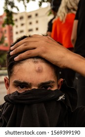 SANTIAGO, CHILE - NOVEMBER 1  A protester shows a rubber bullet wound that he just got.