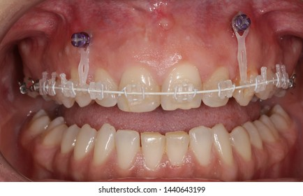 Sapphire braces intraoral view and teeth alignment