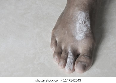 Scabies on the feet,Skin infections from dirty