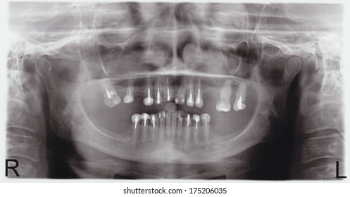 scanned picture of a X-ray of a human teeth