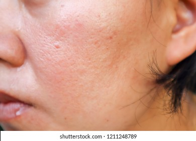 Scar from Acne on face.