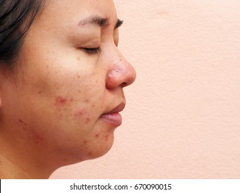 Scar acne on face, facial scar, melasma skin, skin problem, beauty concept