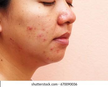 Scar acne on face, facial scar, melasma skin, skin problem, beauty concept