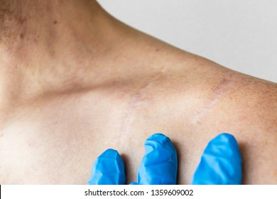 the scar after fracture of the clavicle closeup. doctor's hands in blue latex gloves examine the scar on the collarbone