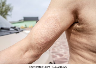 Scar from the burn on the arm
