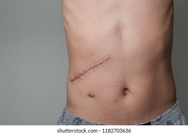 Scar cicatrix pain on human skin