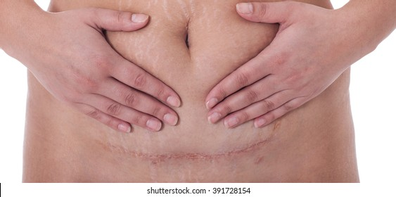 scar from a c-section birth on a white background.