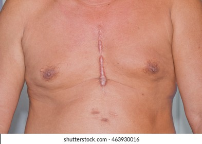 Scar from heart surgery