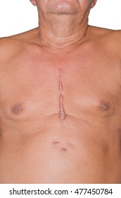 Scar from heart surgery.Isolated