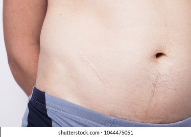 scar on the body after appendicitis. body parts: navel and belly close up
