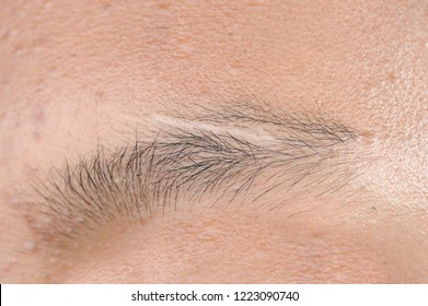 Scar on eyebrow young man close eyes,The concept of severe experience.