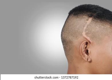 Scar on head, Asian man shave head with big scar
