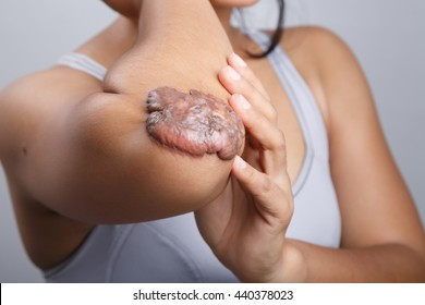 Scar on human skin, keloid on elbow