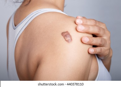Scar on human skin, keloid on shoulder