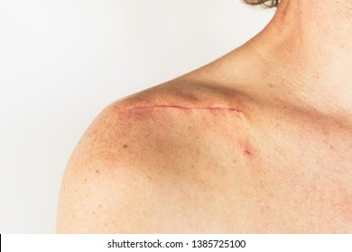 scar on the of a male body after surgery on a broken collarbone, acromion and shoulder