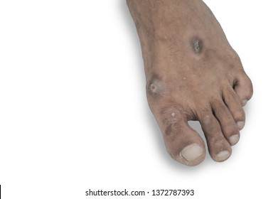 Scar on the young man's foot.