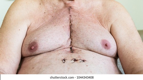 Scar from open heart surgery, where the sternum was cut in two, and the rib cage sprung. Below the scar holes show where the drains and pacemaker cables emerged. Image taken 12 days following surgery