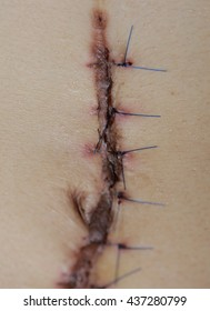 scar from operation  with a black fiber. Stitched up skin after an operation to remove a cancerous mole.