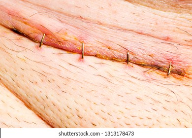 scar with staples in groin of body  by operation of a hernia , close up macro
