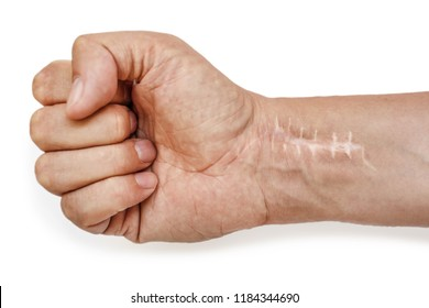 Scar with stitches on the wrist after surgery. Fracture of the bones of the hands in fist isolated on white background