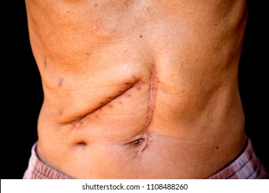 Scars caused by abdominal surgery.