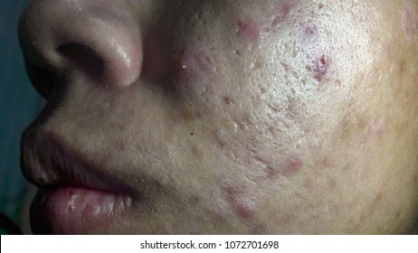 scars and dark spots on the face  The skin is badly repressed from acne  Not properly maintained