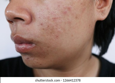 scars and dark spots on the face,