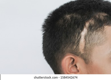Scars on the head,Scars caused by an accident