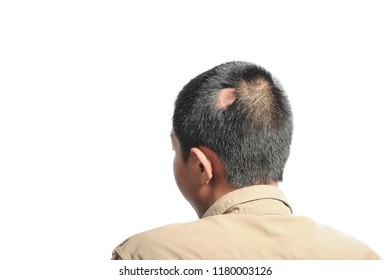 Scars on the head, hair loss.Picture on white background