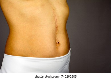 scars removal concept, large scar after surgery on the abdomen young woman, blurred neutral background, selective focus