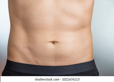 Scars removal concept. Young man with large scar after surgery on abdomen, removal of appendicitis.
