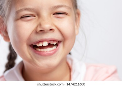 A school-age girl without a front tooth is laughing. Close-up. Change of teeth.