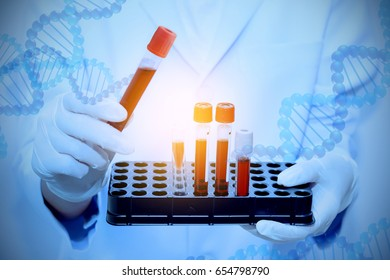 science, chemistry, biology, medicine and people concept - close up of scientist holding tube with DNA testing of the blood in the laboratory with blood sample collection tubes and syringe.(blue tone)