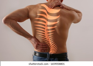 Scoliosis Spine Curve Anatomy, Posture Correction. Back pain relief concept