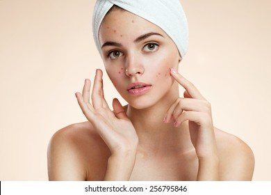 Scowling girl pointing at her acne with a towel on her head. Woman skin care concept / photos of ugly problem skin girl on beige background
