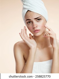 Scowling girl pointing her acne with a towel on her head. Woman skin care concept / photos of ugly problem skin girl on beige background