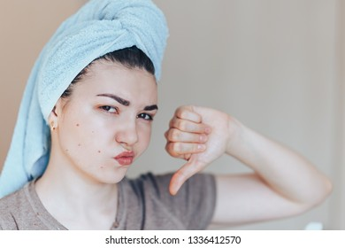 Scowling girl in shock of her acne with a towel on her head. Woman skin care concept photos of ugly problem skin girl on beige background close up selected focus