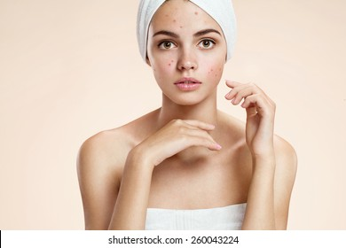 Scowling girl in shock of her acne with a towel on her head. Woman skin care concept / photos of ugly problem skin girl on beige background