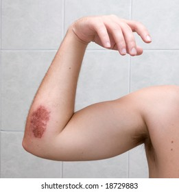 Scraped elbow - 5 days after inline skating accident. The wound is healing well, there is almost no inflammation.