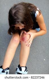 Scraped knee ,focus on knee