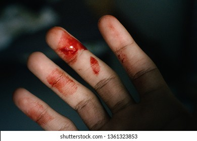 Scratch and Blood on arm after a man try to catch a domestic cat on the road, man's arm placed on a board with a long slice/cut/wound going across it with blood on it drying up, Healthcare conceptual