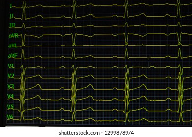 Screen of electrocardiograph device showing twelve yellow ECG cardiography heart rythm leads.