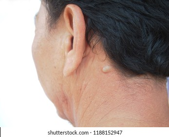 Skin Cyst Images, Stock Photos & Vectors | Shutterstock